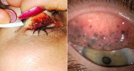 Woman Almost Went Blind For Sleeping With Mascara on For 25 Years - WORLD OF BUZZ