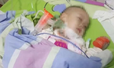This 2-Year-Old In China Was Diagnosed With HIV After An Apple Got Stuck In His Throat - WORLD OF BUZZ 2