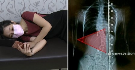 Young Girl Always Lies on Her Side to Play Her Phone, Develops 50 Degrees Curved Spine - WORLD OF BUZZ 2