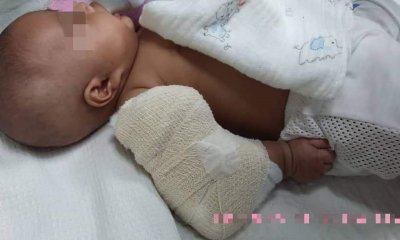 3-Month-Old M'sian Baby Boy Suffers Broken Arm Allegedly from Nanny's Ill-Treatment - WORLD OF BUZZ 3