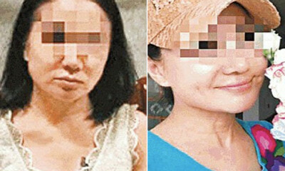 60yo Woman Undergoes Plastic Surgeries to Look Like 20yo to Avoid RM17 Million Debt - WORLD OF BUZZ