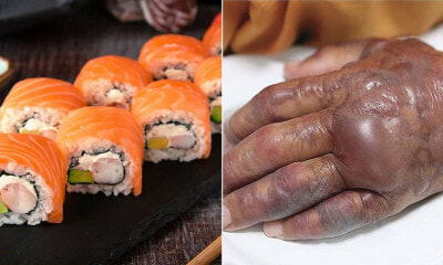 71yo Man Hand Starts to Rot After Eating Sushi, Forced to Amputate Half of His Arm - WORLD OF BUZZ
