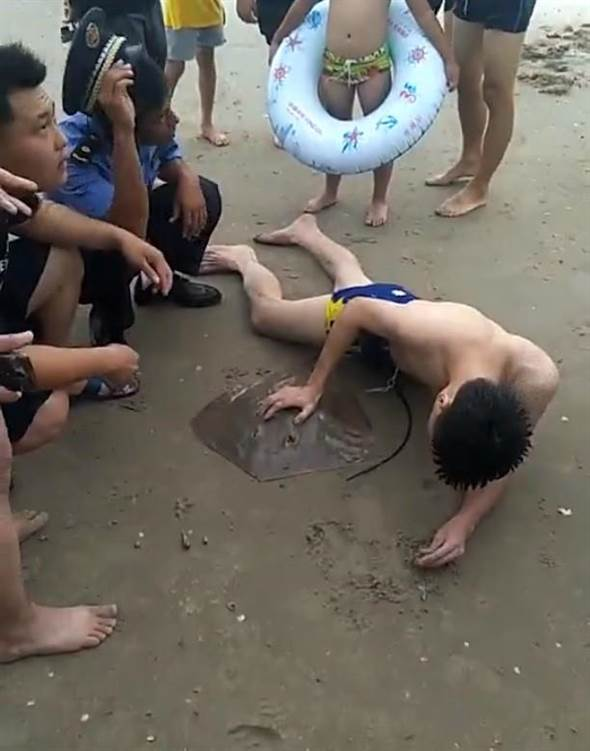 Man's Genitals Painfully Stab by Stingray While Swimming in The Sea - WORLD OF BUZZ