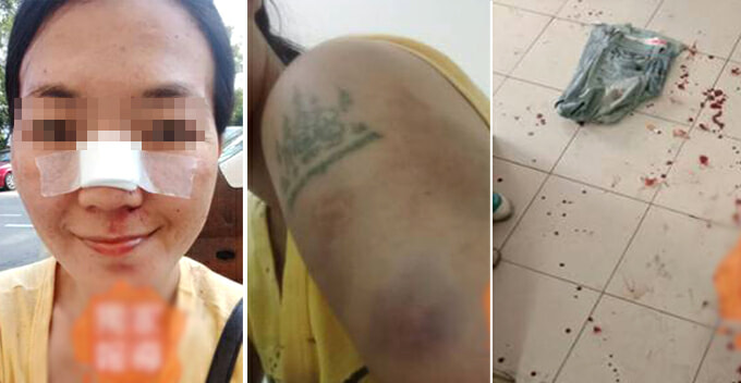 M'sian Wife Brutally Beat Up by Husband Just Because She Said Something Wrong - WORLD OF BUZZ