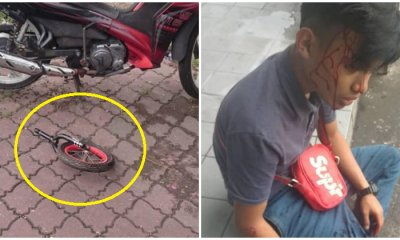 Boy's Head Left Bloodied After Being Struck By Bicycle Part Thrown From Flat in KL - WORLD OF BUZZ 1