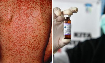 Travellers Advised to Get Vaccinated Before Going to Thailand Due to Measles Outbreak - WORLD OF BUZZ 4