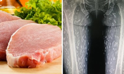 Woman's Love for Eating Raw Meat Causes Her Legs to Be Infected with Parasitic Worms - WORLD OF BUZZ 2