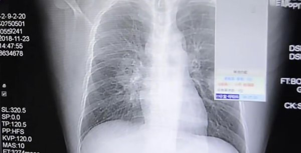 Man Developed Severe Fungal Infection In His Lungs After Sniffing His Smelly Socks Every Day - WORLD OF BUZZ 1