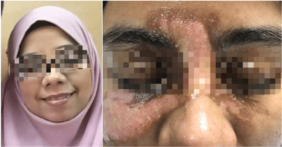 Woman Suffered 2nd And 3rd Degree Burns On Her Face After A Facial Spa Accident, Owner Refused To Be Responsible - WORLD OF BUZZ 3