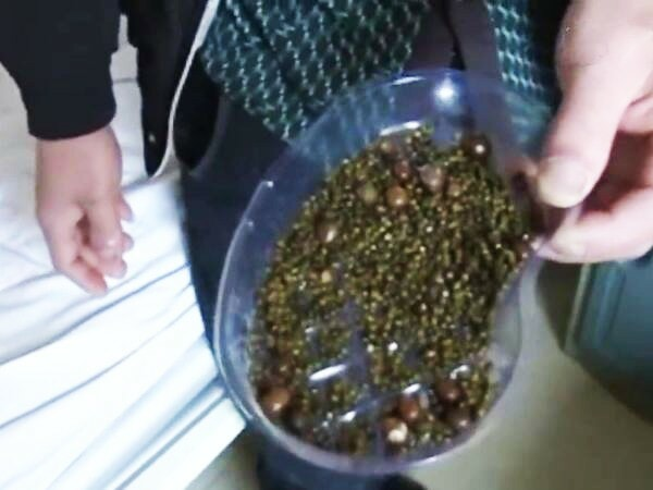 Doctors Remove Over 2,000 Gallstones from Woman Who Doesn't Eat Breakfast & Drinks Less Water - WORLD OF BUZZ 1