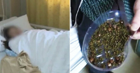 Doctors Remove Over 2,000 Gallstones from Woman Who Doesn't Eat Breakfast & Drinks Less Water - WORLD OF BUZZ 3