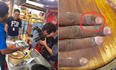 Photos of Mamak Employee Making Dough With Open Wound on Finger Goes Viral - WORLD OF BUZZ