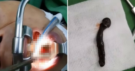 Surgeons Removing Woman's Throat Tumor Discover It's actually Huge 2-inch Leech. - WORLD OF BUZZ 1