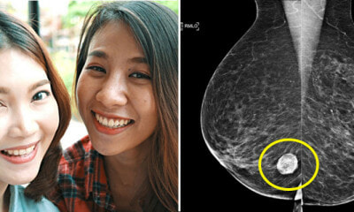 Breast Cancer Survivors Share the 5 Unlikely Symptoms M'sians Must Look Out For - WORLD OF BUZZ 1