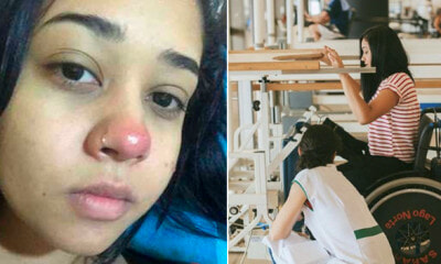 Girl Becomes Paralysed After Piercing Her Nose Due to Bacterial Infection - WORLD OF BUZZ