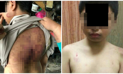 Johorean Boy Abused by Stepfather and Mum with Rice Cooker Cable - WORLD OF BUZZ 1