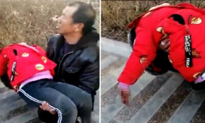 Little Girl Stuffs Firework In Manhole, Finger Blown Off In Blast - WORLD OF BUZZ 6