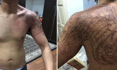 "Msian Shares His Horrific Experience Using  'Halal Tattoo', Causing Severe ""Burns"" on Skin - WORLD OF BUZZ"