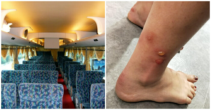 M'sian Woman Takes Bus Ride to Singapore, Gets Blisters and Rashes from Bed Bugs - WORLD OF BUZZ