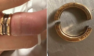 Woman Receives Ring Worth RM28,000 On Valentine's, Had To Cut It Off As Finger Was Too Thick - WORLD OF BUZZ