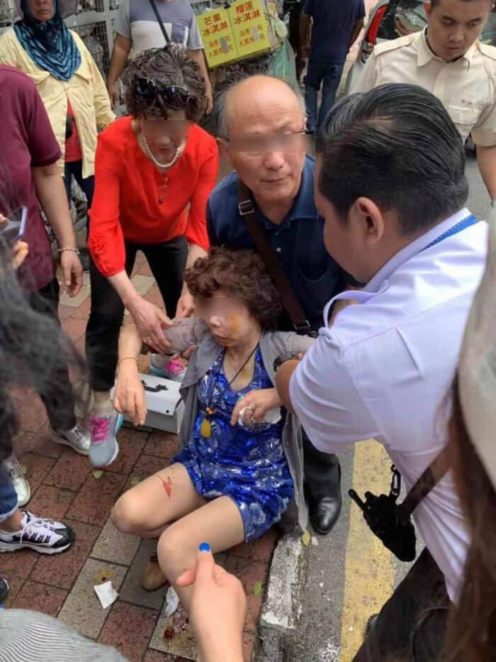 Chine Tourist Suffers Bad Head Injuries Falls Victim to Snatch Theft While Walking Near KLCC - WORLD OF BUZZ