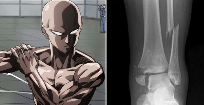 Malaysian Man Tries One Punch Man Workout Challenge, Ends Up With Fractured Ankle - World Of Buzz