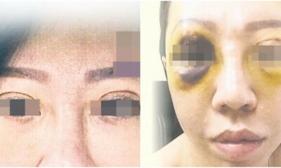 This Woman Had A Double Eyelid Surgery In A Cheras Beauty Salon And Now Her Right Eyeball Is Damaged - World Of Buzz