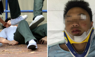 "14yo Student Gets Assaulted & Rushed to Hospital, School Tells Parents He ""Had A Seizure"" Instead - WORLD OF BUZZ 2"