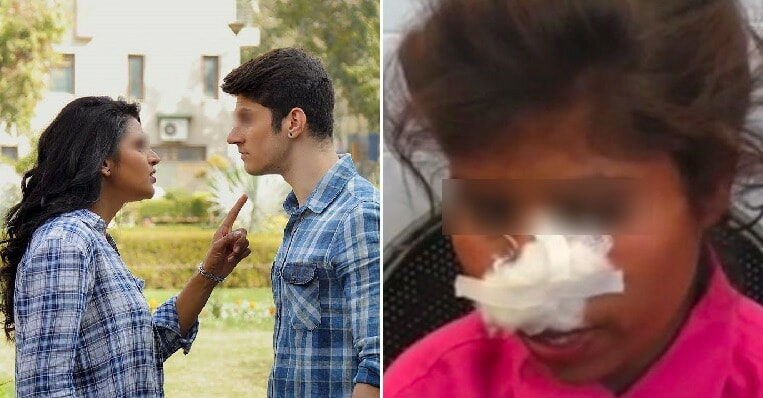 Ex-BF Viciously Bites Off Woman's Nose & Severely Injures Her After She Rejected Him Again - WORLD OF BUZZ 1