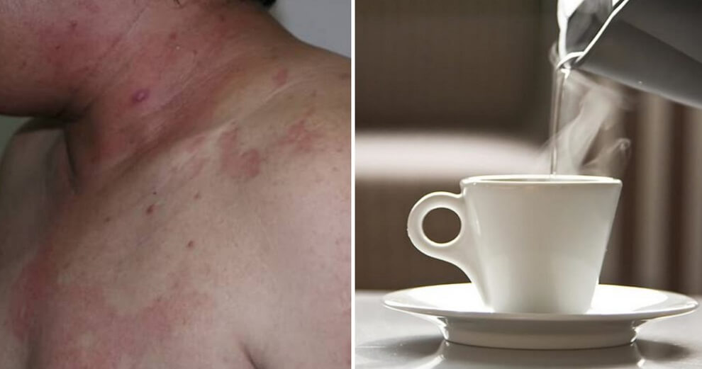 66yo Father Arrested For Scalding His Son With Boiling Water After Arguing Over RM30k Insurance Money - WORLD OF BUZZ 2