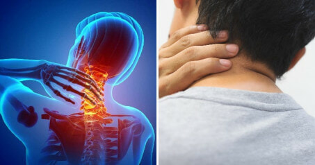 Beware: 28yo Man Suffers Severe Stroke Because He Stretched & Popped His Neck - WORLD OF BUZZ 3
