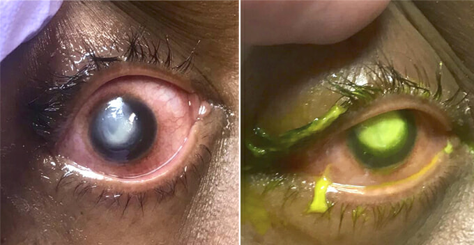 Doctor Shares How Woman's Cornea Gets Eaten Away By Bacteria After Sleeping In Contact Lenses - WORLD OF BUZZ