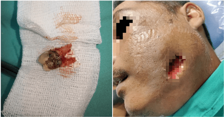 Lady Treats Her Caesarean Would With Turmeric And It Gets Severely Infected - WORLD OF BUZZ