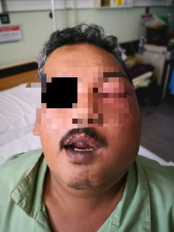 Man Applies Brake Fluid To Cure His Toothache, Got Admitted Into ICU Because Of Severe Infection - WORLD OF BUZZ 1
