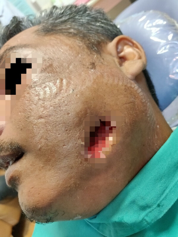 Man Applies Brake Fluid To Cure His Toothache, Got Admitted Into ICU Because Of Severe Infection - WORLD OF BUZZ 3