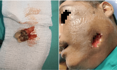 Man Applies Brake Fluid To Cure His Toothache, Got Admitted Into ICU Because Of Severe Infection - WORLD OF BUZZ 4