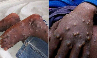 Man Tested Postive For Monkeypox in Singapore, 23 People Quarantined For 21 Days - WORLD OF BUZZ