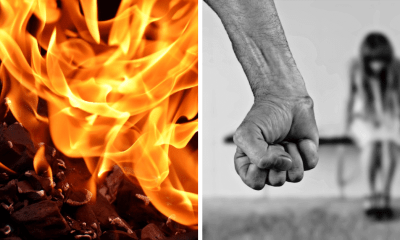 Victim Of Jealous Husband Passes Away After Being Severely Burned - World Of Buzz