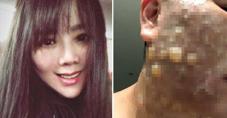 Woman Badly Disfigured & Scarred After Suffering Second-Degree Burns From Facelift - WORLD OF BUZZ 4