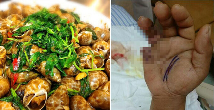 Women Eat Seafood Contaminated With Flesh-Eating Bacteria, Succumb to Organ Failure - WORLD OF BUZZ