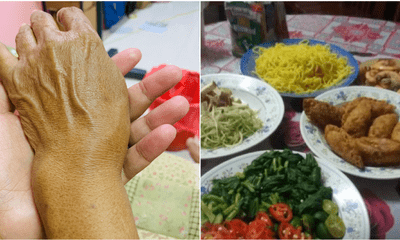 Aunty With Broken Wrist Cooked For Raya Her Guests But They Did Not Show Up - WORLD OF BUZZ 2