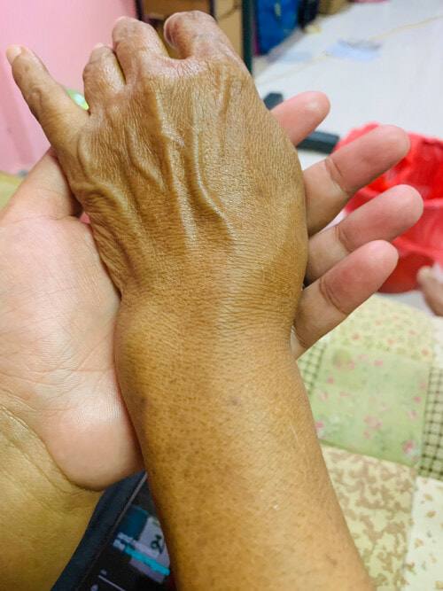 Aunty With Broken Wrist Cooked For Raya Her Guests But They Did Not Show Up - WORLD OF BUZZ