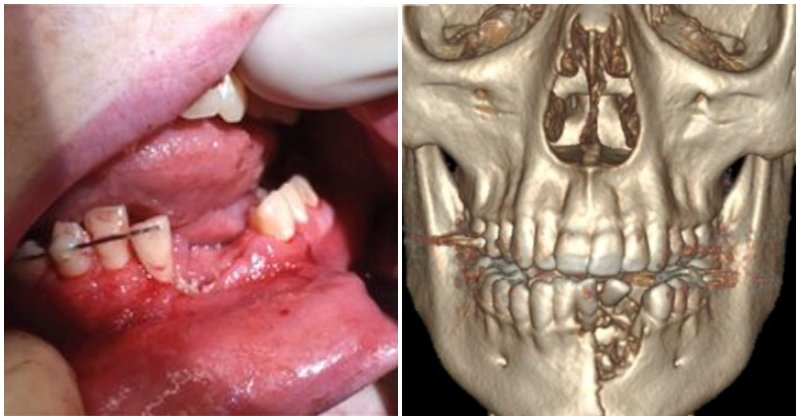 Beware: Vape Device Shatters 17-Year-Old's Jaw And Teeth After It Explodes In His Mouth - World Of Buzz