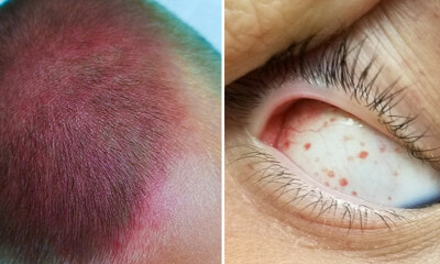 Boy Left With Bruised Head & Burst Eye Blood Vessels After Violently Spinning On Swings - WORLD OF BUZZ
