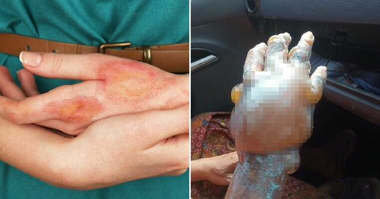 Malaysian Doctor Warns That Using Home Remedies Such as Toothpaste on Burns Is a Seriously Bad Idea - WORLD OF BUZZ