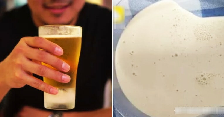 This Man Loves to Drink Beer Every Day Until Doctor Extracted Thick White Fluid From Swollen Knee Joint - WORLD OF BUZZ 4