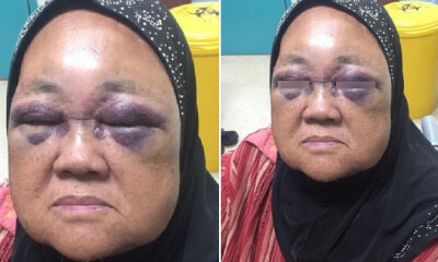 69yo Malaysian Risks Being Blind After Grandson Punches Her Eyes When His Baby Cried - WORLD OF BUZZ 2