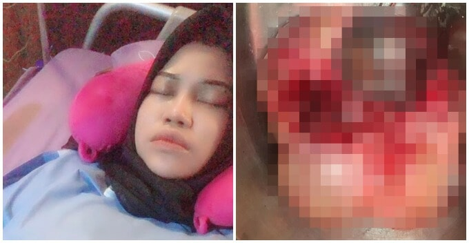 Alor Setar Woman Developed Two Huge Ovarian Cysts Due to Eating Too Much Fast Food - WORLD OF BUZZ