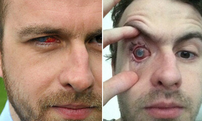 Man's Right Eye Goes - WORLD OF BUZZ