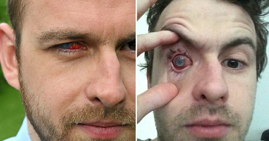 Man's Right Eye Goes - WORLD OF BUZZ